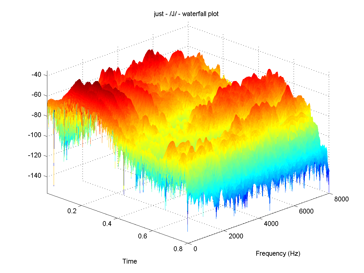 Acoustic features of speech sounds and frequency domain filtering just j ccuart Gallery
